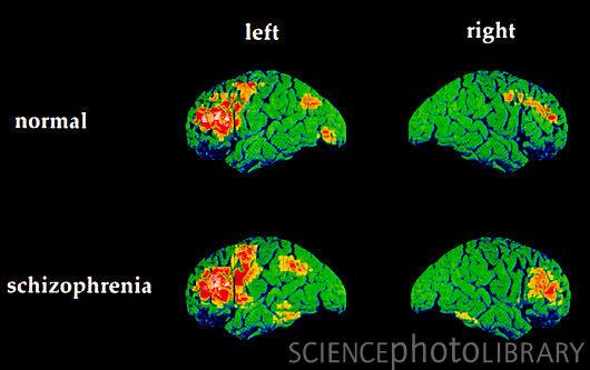 Effetti Cerebrali Schizofrenia